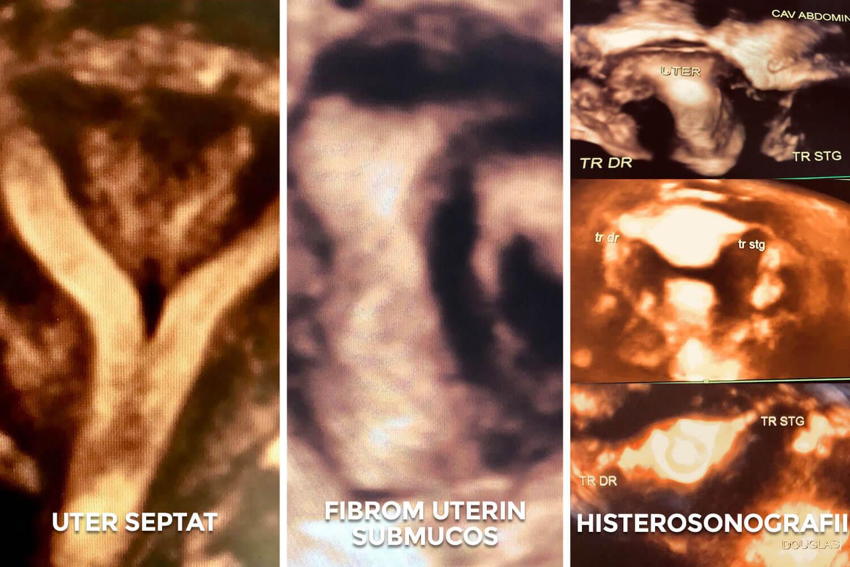 Ecografia de reconstrucție 3D a cavității uterine - Histerosonografia cu reconstrucția 3d a traiectului trompelor uterine - Dr. Valentina Vargolici I Femmeboutiquemedical.com